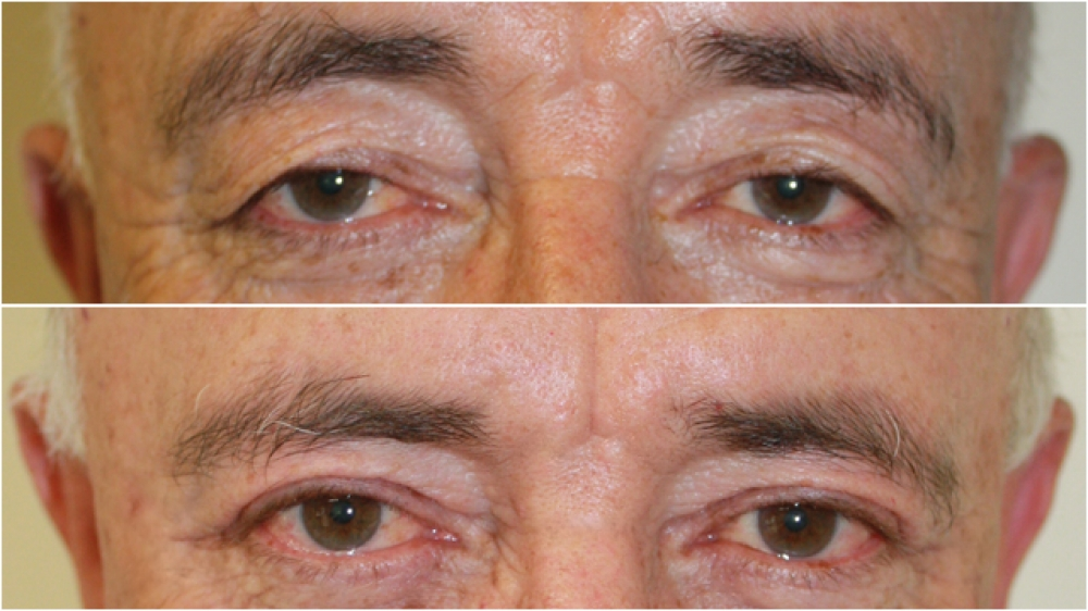60s, bothered by excess upper eyelid skin obscuring vision and giving an aged appearance. Correction with extended upper eyelid blepharoplasty.