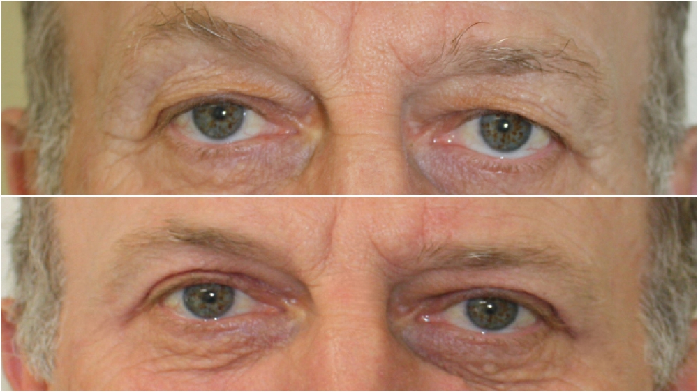 63 year old man, vision impeded by excess, saggy skin above eyes. Blepharoplasty surgery performed to restore functionality and aesthetic appearance.