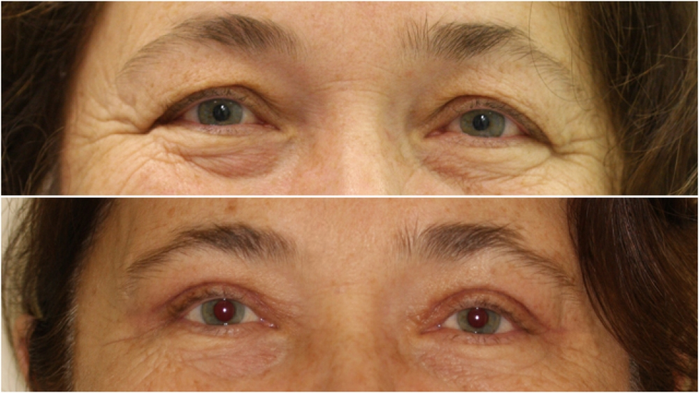 55 year old lady, requesting upper eyelid reduction surgery to restore more youthful looking, open eyes. A concomitant direct brow lift has also been done in this case