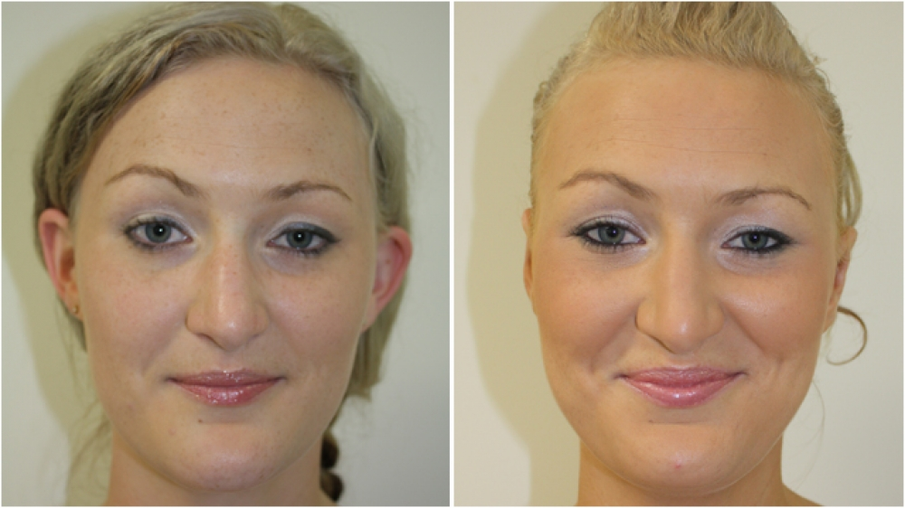 20s F, bothered by moderately protruding ears with lack of fold definition. Correction with ear reshaping surgery (otoplasty) with all incisions hidden behind the ears.