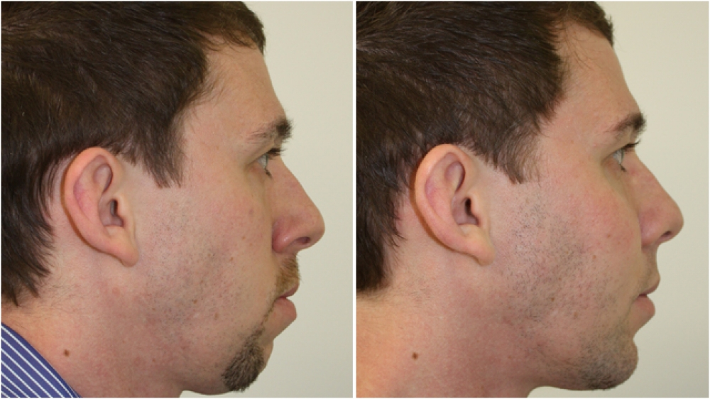Mid 20s, facial profile lacking balance because of chin deficiency as well as inadequate cheek projection. Balance has been restored with the use of chin and cheek implants in this patient.