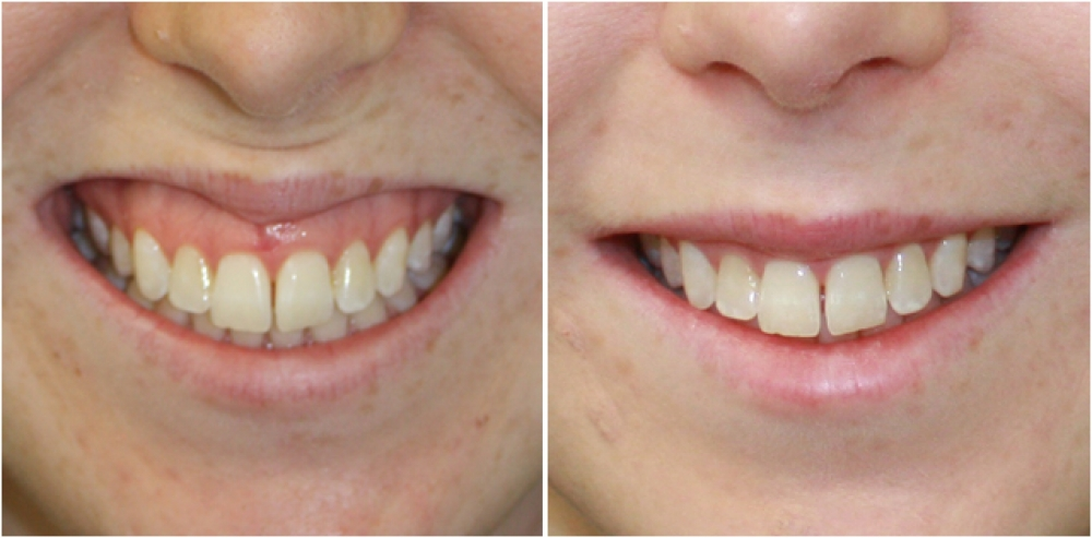 A 'gummy smile' is one that shows too much upper gum compared to teeth. This patient, in her 20s, had a surgical 'lip repositioning' procedure to correct the problem.