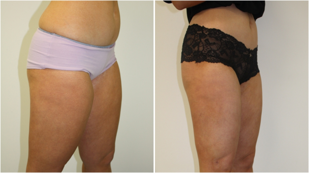 20s, female, liposuction to buttocks, thighs, flanks and tummy.