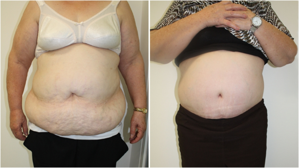 63yo female, requiring major contour restoration, belly button reshaping, as well as large amount of redundant skin and fat removal. An extended tummy tuck operation was performed to achieve these goals.