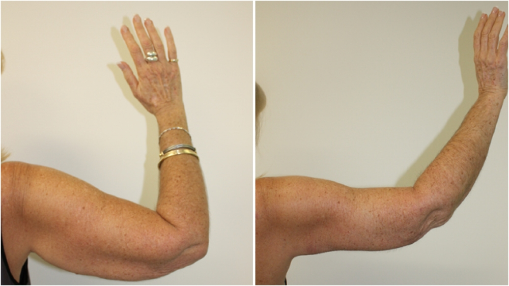 59 year old woman, requesting reduction of excess skin off both upper arms. Additional liposuction was used to remove the excess fat.