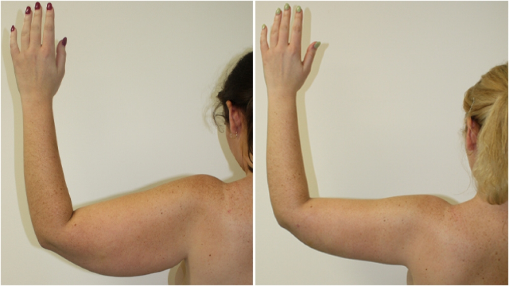 25 year old woman, post weight loss, underwent brachioplasty procedure to achieve a more streamline appearance.