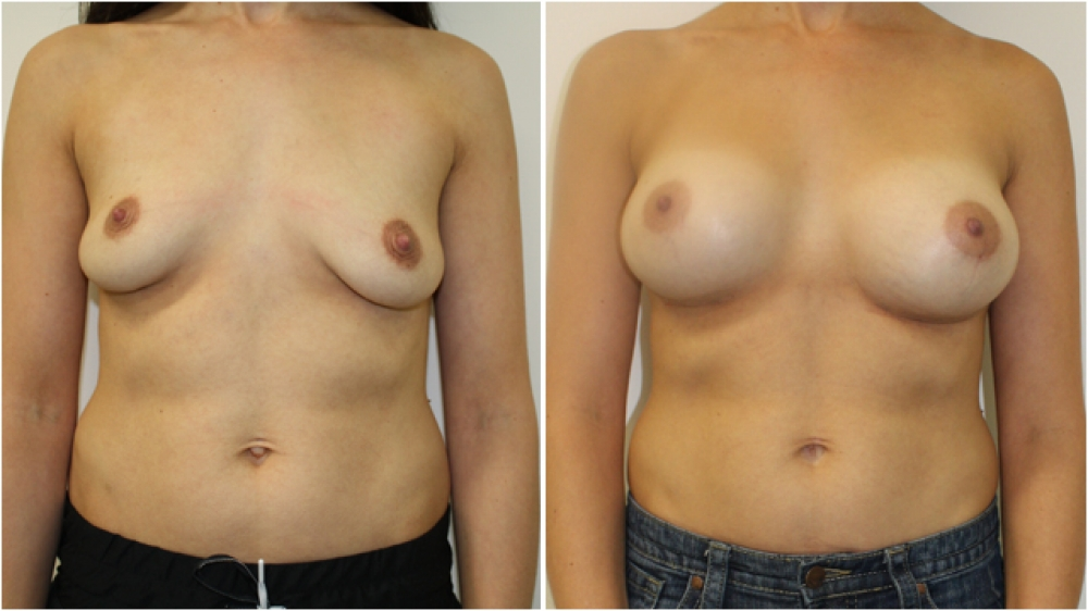 This 30 year old mother of 2 underwent concurrent breast augmentation and belly button reshaping surgery to achieve a more attractive appearance.