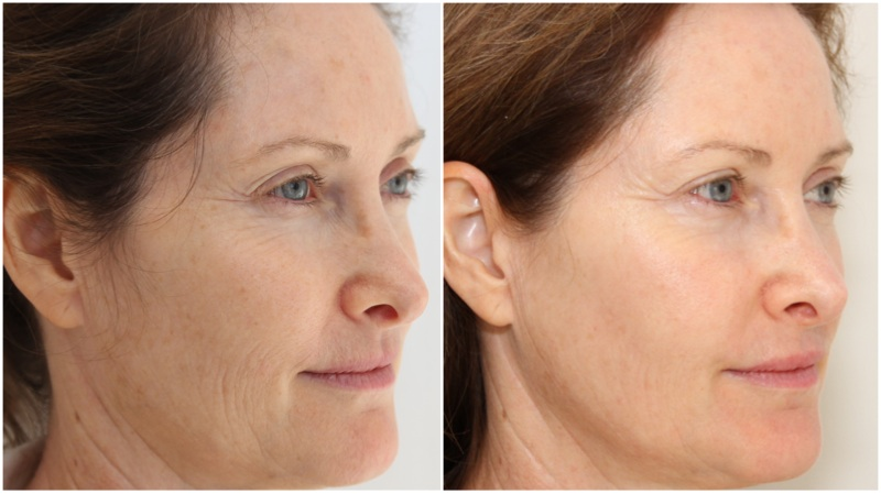 Wrinkle reduction and skin texture improvement using a course of fractional laser technology
