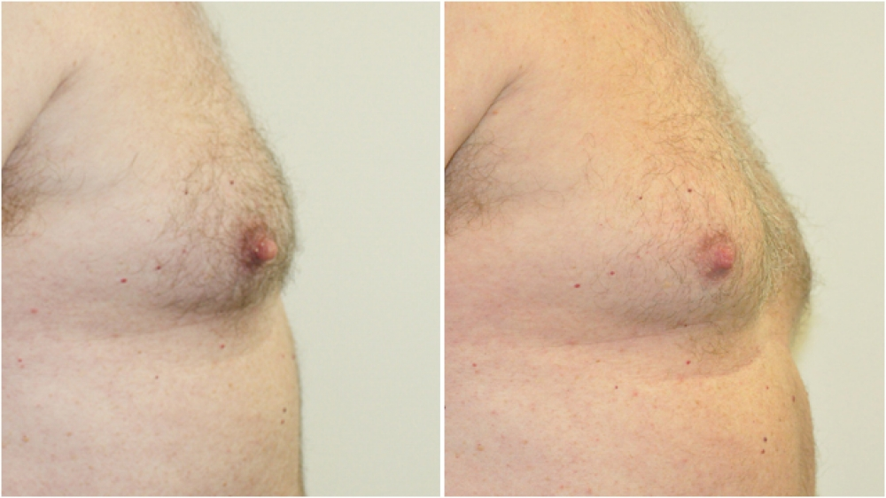 Mid 50s male, overtly large pointy nipples reduced in height and width for a more aesthetic male contour.