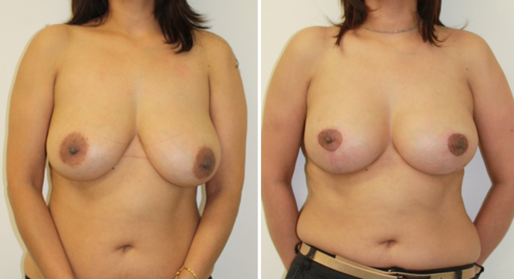 Early 40's, previous breast augmentation performed elsewhere with smooth saline implants. Poor shape and droop corrected by Dr Miroshnik with a revision augmentation (with 335g high profile teardrop shape implants) plus vertical short scar breast lift.