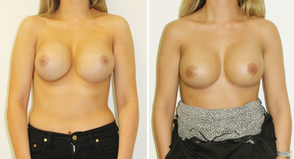 Early 20's, original augmentation surgery performed elsewhere. Removal/capsulectomy and replacement of both breast implants by Dr Miroshnik to improve shape and consistency after capsular contracture.