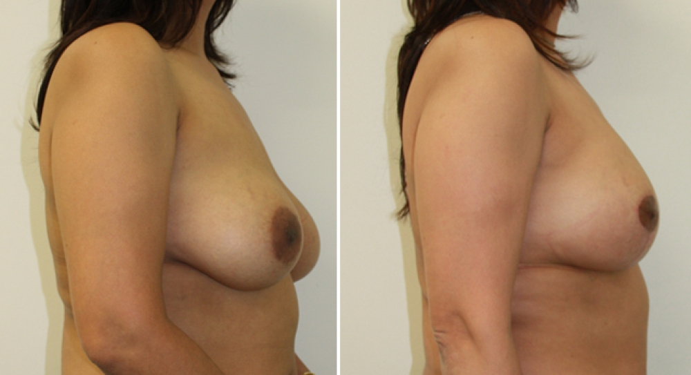 Early 40s, vertical short scar breast lift with 355g high profile teardrop implants to correct shape and droop.
