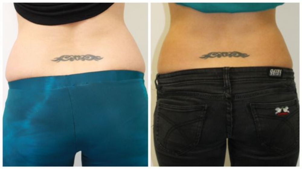 Late 20s, series of 4 Exilis treatments to tummy and love handle area.