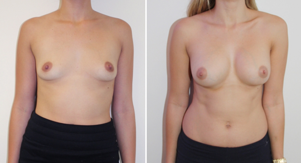 Subtle-style breast augmentation by Dr Miroshnik using 360g anatomics, moderate profile, dual-plane positioned