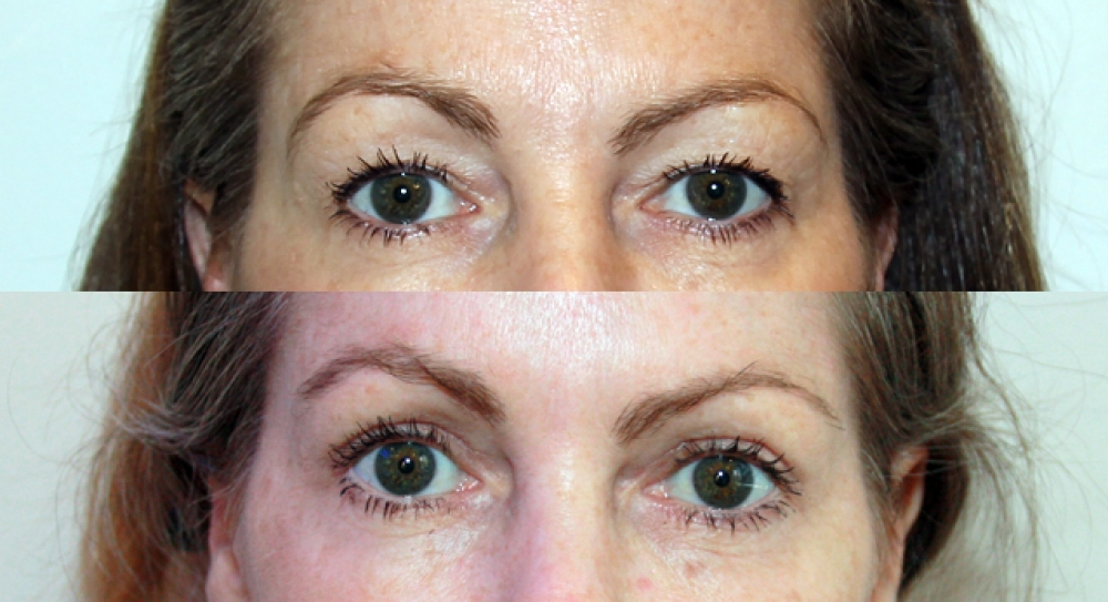50 yo, upper lid reduction performed to restore a more youthful and open eyed look.
