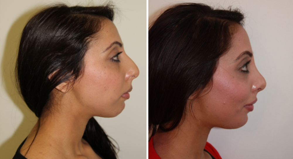 Mid 20s, open rhinoseptoplasty performed to feminise profile and tip, with a gentle slope.