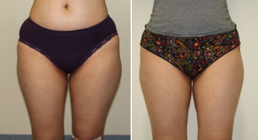 Mid 20s, series of 4 exilis treatments to left and right thighs, resulting in a significant decrease in measurements.