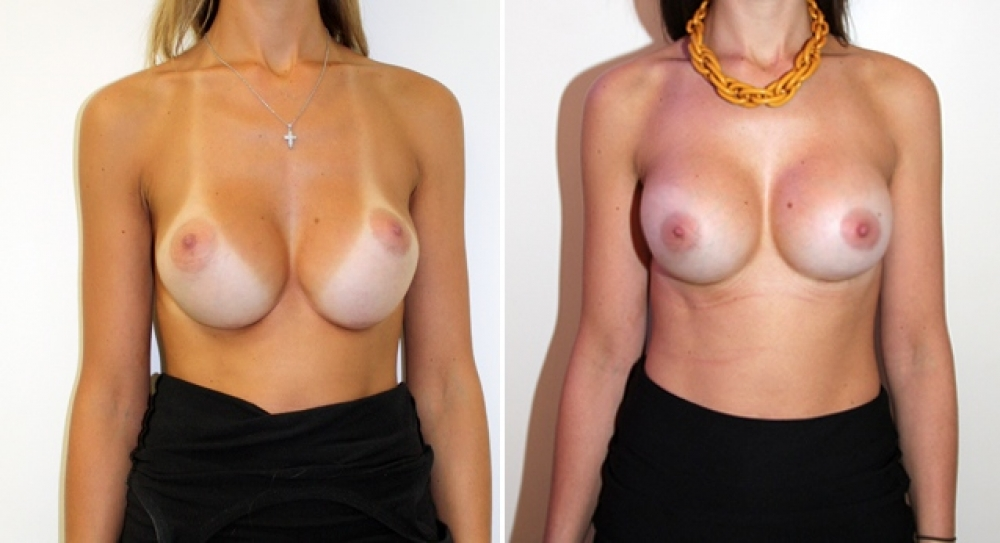 Late 20s, previous breast augmentation performed elsewhere. This patient demonstrates the phenomenon of implant 'bottoming out'. Corrective breast augmentation surgery performed by Dr Miroshnik to restore implants to their correct place.