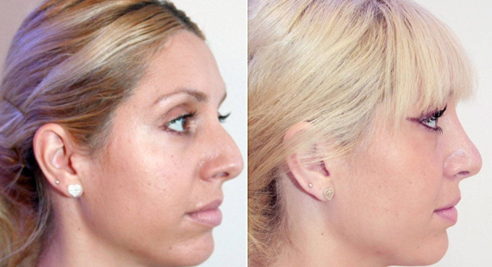 Early 30s, open rhinoplasty procedure performed to remove hump, improve shape and feminise tip.