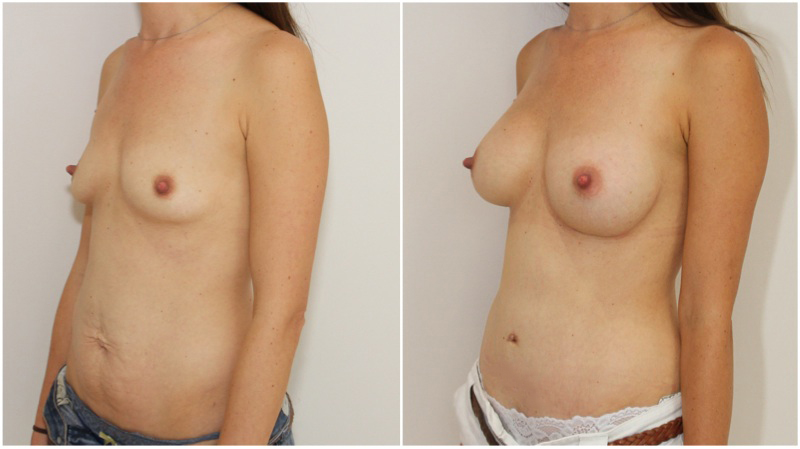 215g subfascial breast augmentation combined with muscle tightening tummy tuck.