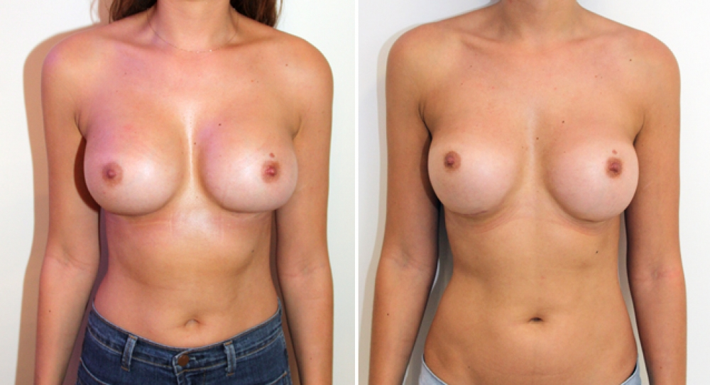 Early 30's, original augmentation surgery performed elsewhere. Removal/capsulectomy and replacement of both breast implants using 360g textured, round implants.