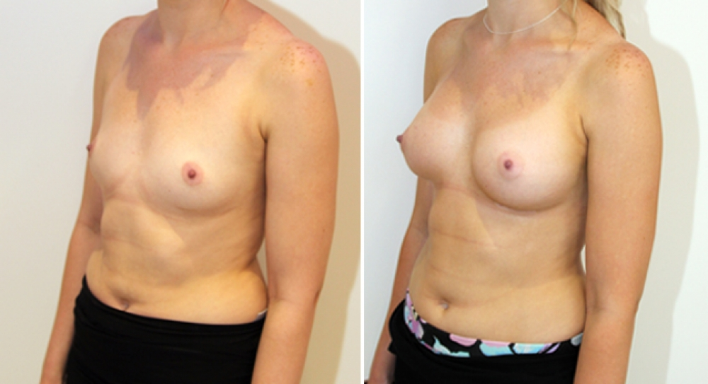 Subtle-style enhancement by Dr Miroshnik using 315g anatomical implants, dual-plane positioned