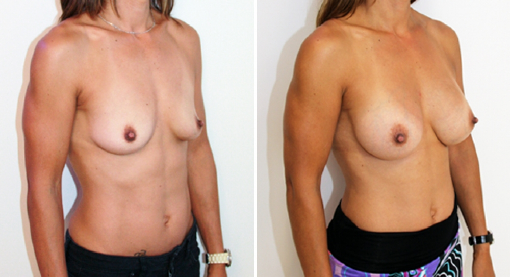 Subtle-style enhancement by Dr Miroshnik using 345g anatomical implants, subfascial positioned