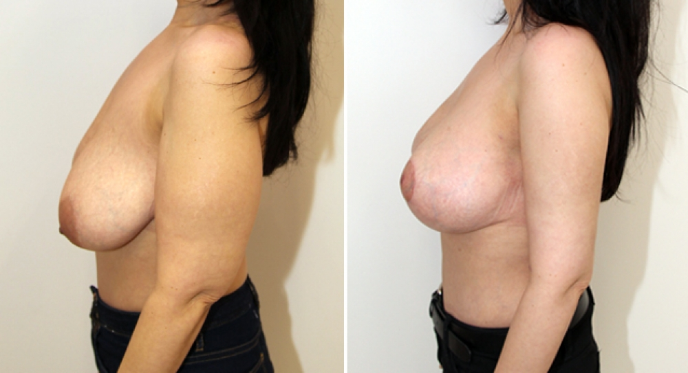 42 yo, bilateral brachioplasty performed to restore a slim and youthful appearance to arms. Note patient has also had a breast lift.