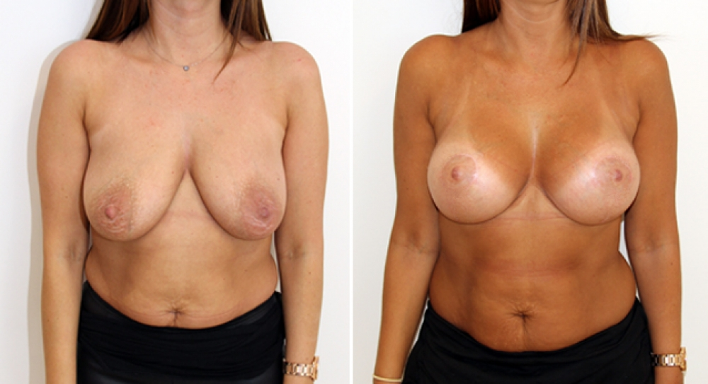 For breast implant lift picture opinion