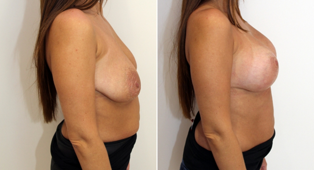 Late 30s, breastfed, augmentation mastopexy (breast lift and implants) with round 385g implants.