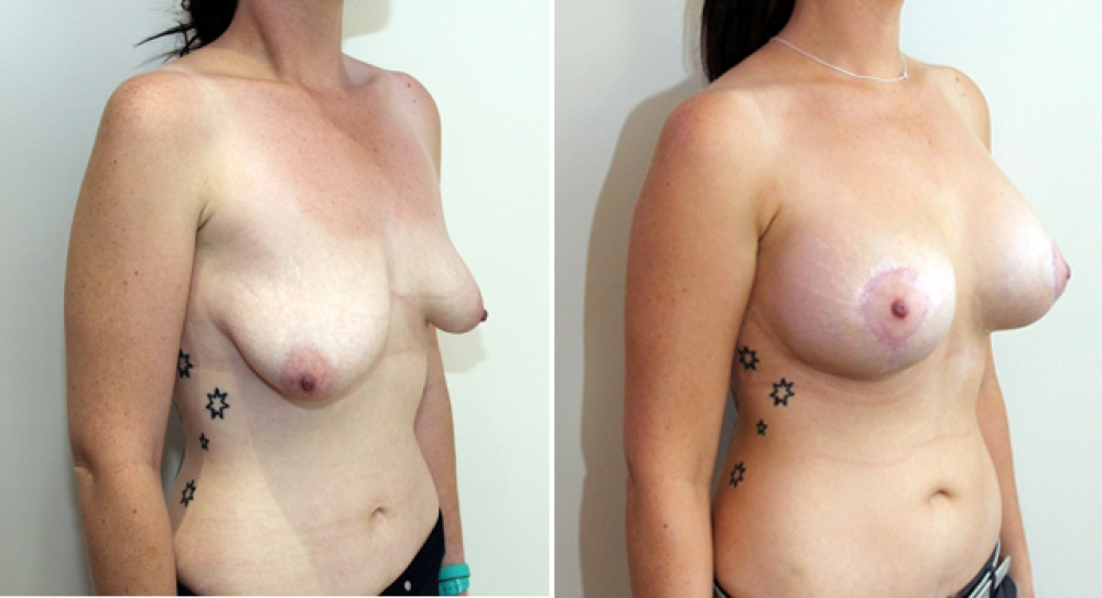 20s, asymmetric tuberous breasts corrected and augmented with vertical and periareolar approach.