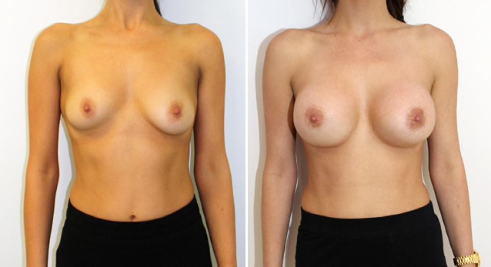 Mid 20s, mild bilateral tuberous breasts corrected/augmented with 390g anatomic implants and periareolar approach.