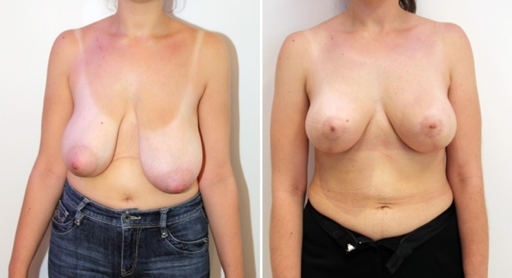 Tuberous breasts combined with ptosis (or droop) corrected by vertical lifting and parenchymal redistribution. No implants used in this case.