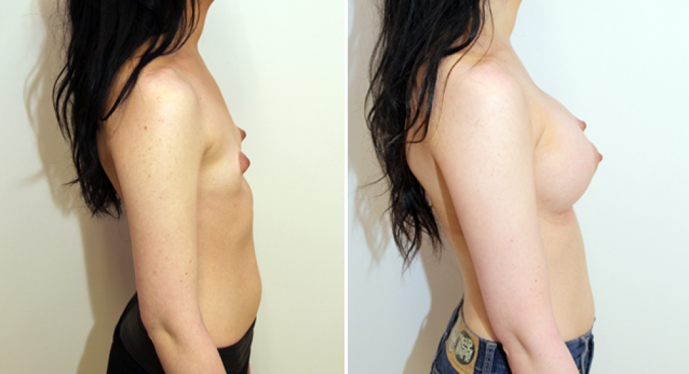 Mild bilateral tuberous breasts corrected with augmentation and parenchymal scoring.