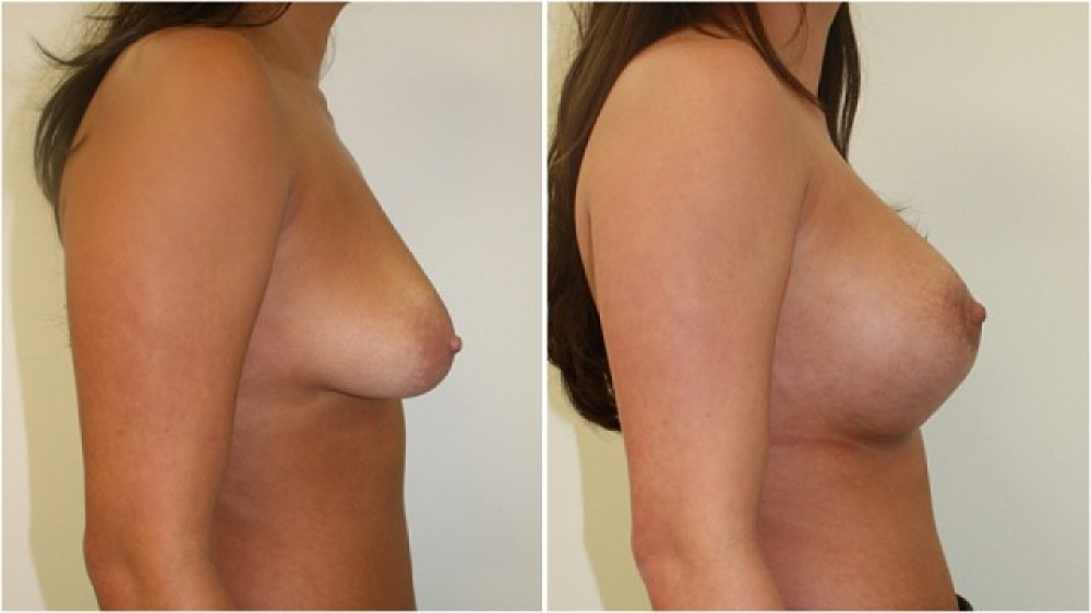 20s, moderate tuberous breasts corrected with periareolar approached augmentation (290 g anatomic implants) and parenchymal scoring.