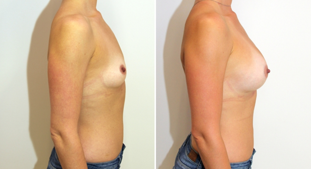 Subtle-style enhancement by Dr Miroshnik using 360g anatomical implants, dual plane positioned