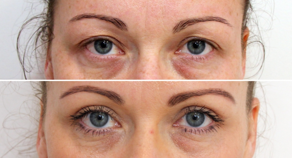 Upper blepharoplasty (eyelid reshaping) to remove skin excess, combined with direct brow lift