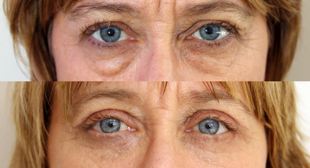 Upper and lower eyelid surgery to create youthful appearance of the upper eyelid fold, remove excess skin as well as reposition excess fat of the lower lid.