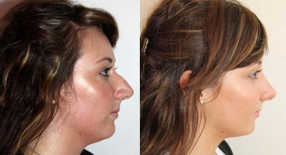 Early 20s, open rhinoseptoplasty performed to improve shape and profile.