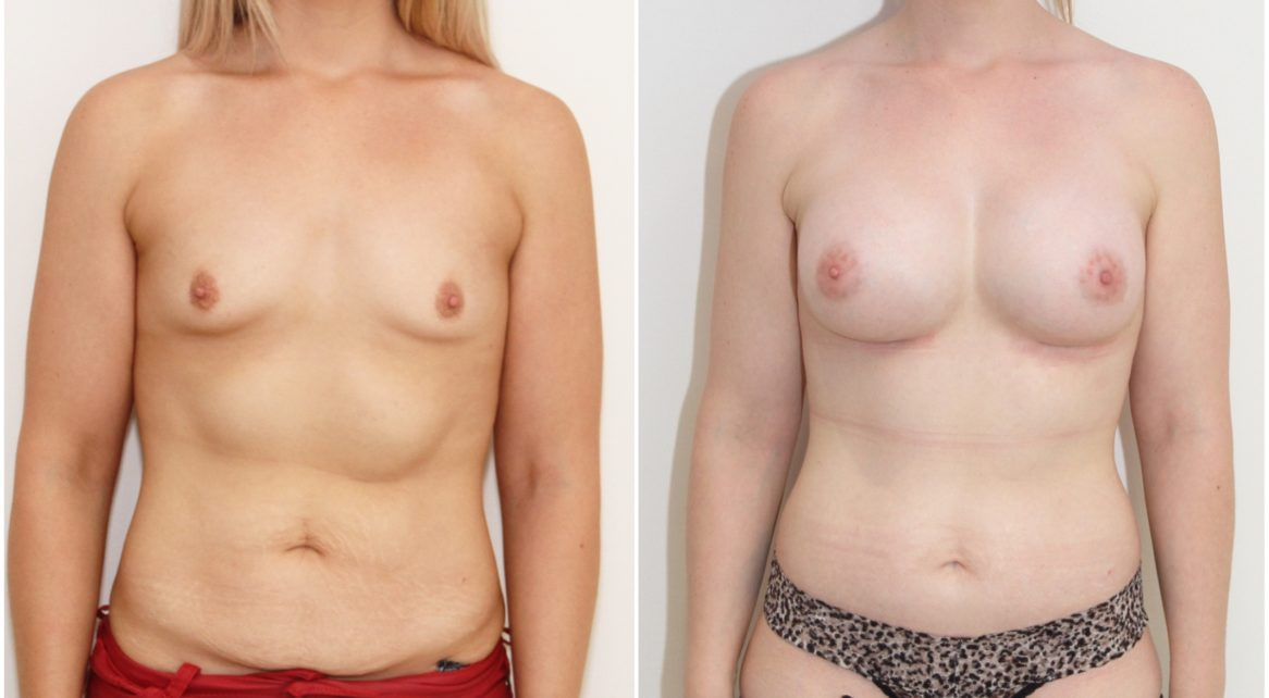 Full abdominolioplasty combined with 420cc anatomical breast augmentation
