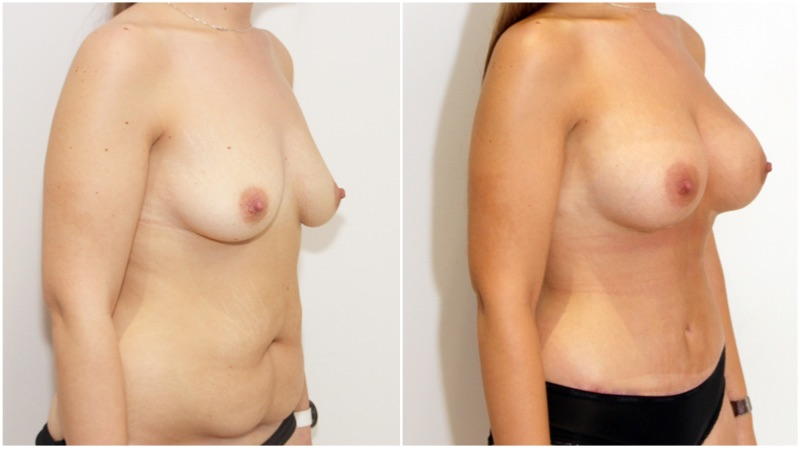 Breast augmentation combined with waist tightening tummy tuck (extended abdominolipoplasty)
