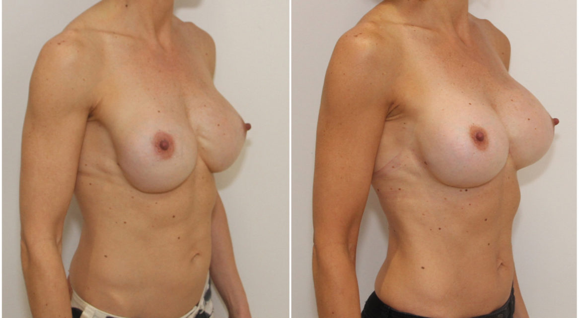 Correction of rippling around cleavage and reshaping lower pole of breast with capsulectomy, internal bra and 555cc anatomical dual plane positioned implants.