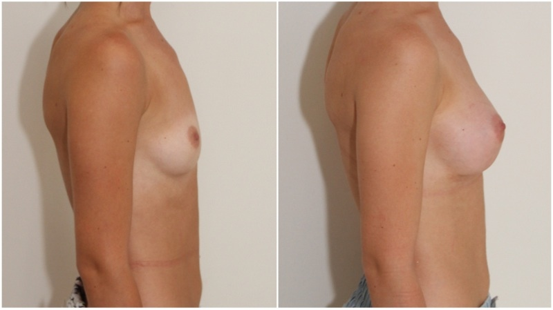 Subtle style enhancement by Dr M using 255g/295g cohesive anatomical implants to also correct asymmetry.