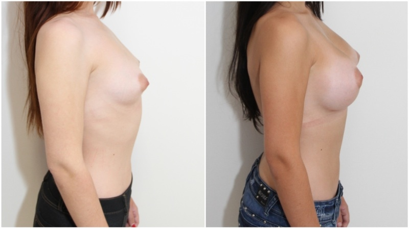 Grade 1 Tuberous style breasts, reshaped and augmented with 330cc anatomics