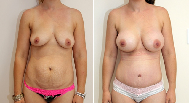 Mummy makeover including breast augmentation with 415g full profile round implants and muscle tightening tummy tuck.
