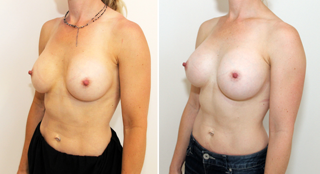 Breast implant removal and repositioning with subfascial placement of 410g anatomical P-URE implants to narrow cleavage and improve symmetry.