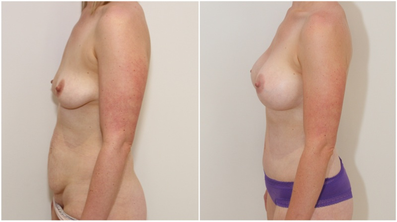 Mummy Makeover with breast augmentation using 420g gel implants, muscle tightening full tummy tuck.