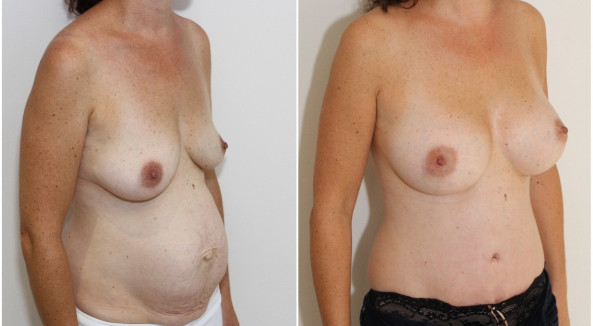 Mummy Makeover including breast augmentation with 375g memory gel anatomical implants and a waist defining, muscle tightening tummy tuck.