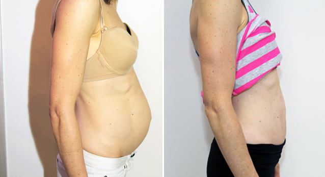Severe muscle separation post pregnancy correct with full tummy tuck.
