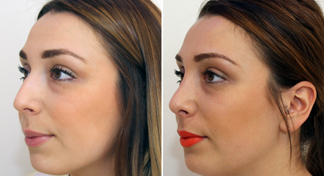 Rhinoseptoplasty to refine profile, lift tip and balance facial features.